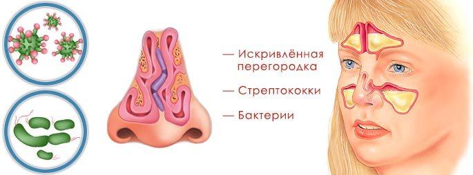 Деформация носовой перегородки, бактерии и стрептококки