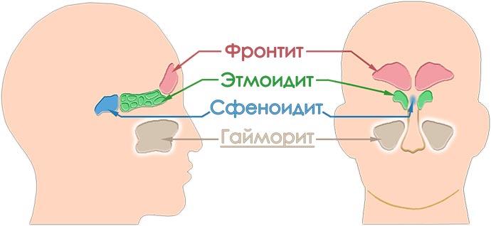 Гайморит верхнечелюстной пазух, Фронтит, Этмоидит и Сфеноидит