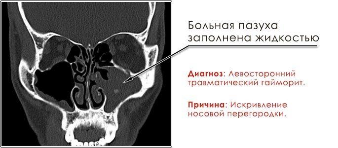 Фото рентген-снимок пазух, диагноз — травматический гайморит