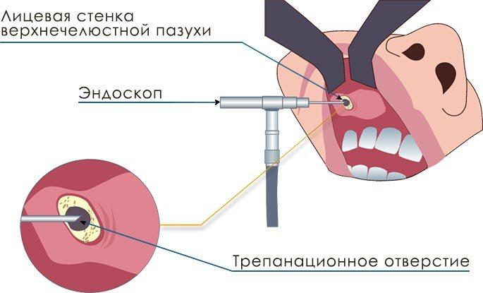 Схема операции Калдвелла-Люка по удалению кисты