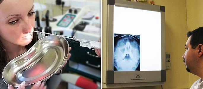 Диагностическая пункция гайморовой пазухи и снимок с информацией о кисте