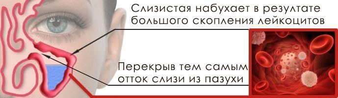 Причина воспаления слизистой оболочки пазух