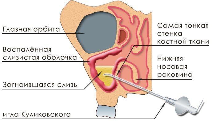 Схема прокола носовой пазухи