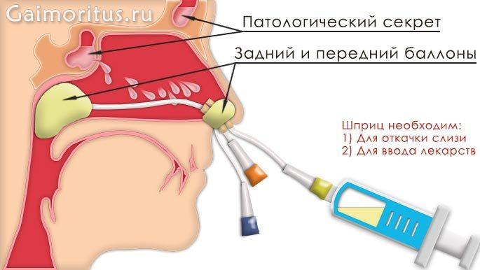 Схема ямик-катетера в носовой
