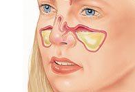 Лечение гнойного гайморита и основные симптомы проявления