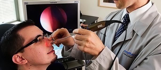 Эндоскопический осмотр носовой полости