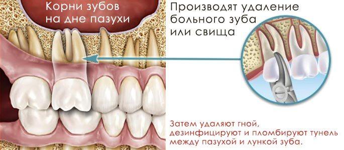 Как лечить боль после удаления зуба мудрости