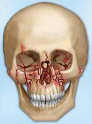 Травма носа — лицевой кости