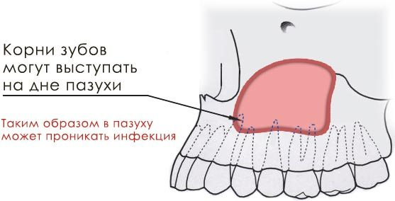 Схема проникновения в пазуху зубных бактерий