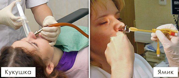 Промыть нос в поликлинике