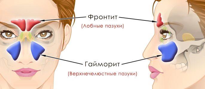 Схема расположения фронтальных пазух и верхнечелюстных