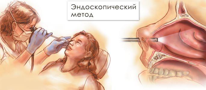 Просмотр с помощью эндоскопа