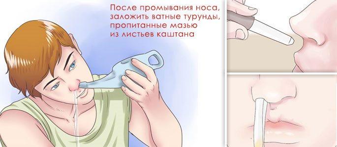 Промывание и закладка в нос ватных тампонов