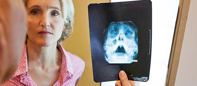 Женщина у доктора диагноз гайморит