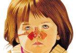 Симптомы, признаки и лечение гайморита у детей
