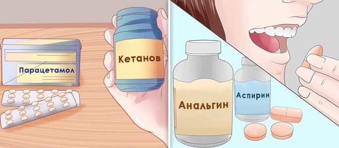 Приём обезболивающих препаратов аспирин, анальгин, парацетамол, кетанов и др.