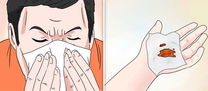 Сопли при гайморите, их цвет и как правильно сморкаться