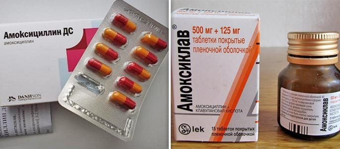 Антибиотики при синусите – какие препараты лучше?