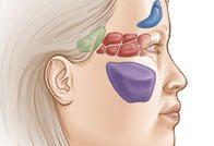 Симптомы и лечение катарального и гнойного синусита