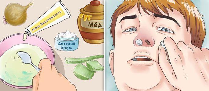 Рецепты приготовления мазей и закладка пропитанных тампонов в нос