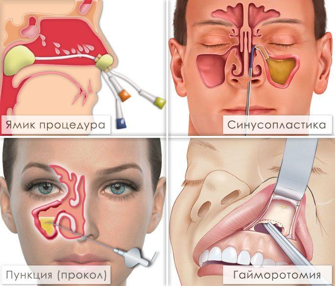 Дермоидная киста яичника симптомы и лечение женщины