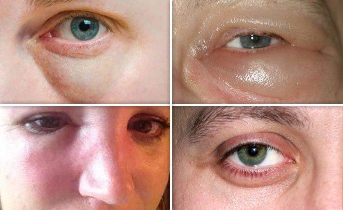 Фото отёчности носа и тканей под глазами
