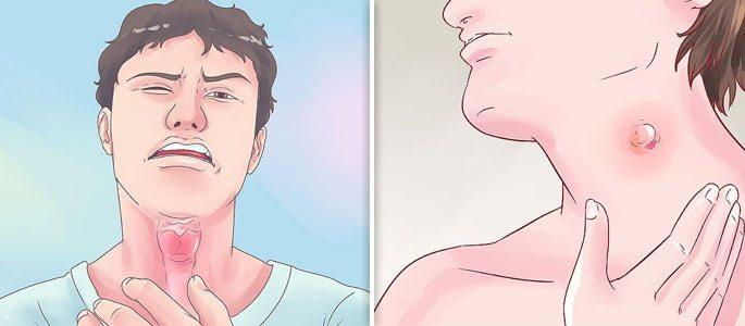 Выпуклые шарики лимфа узлы на шее и боль в горле