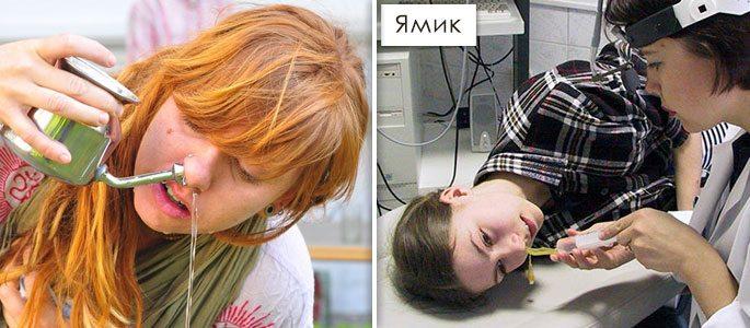 Ямик процедура при гайморите в домашних условиях   Лечение гайморита 24