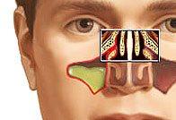 Способы лечения гемисинусита