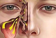 Лечение хронического риносинусита и его симптомы