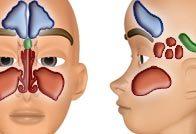 Лечение пансинусита острой, хронической и гнойной стадии
