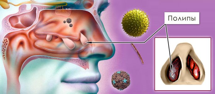 Прокол при остром пансинусите - один из простых и эффективных методов лечения воспаления пазух