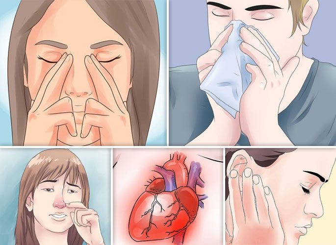 Симптомы по которым можно выявить полипозный вид риносинусита
