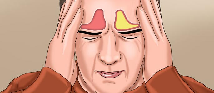 Острый фронтит: симптомы, лечение, причины возникновения