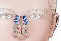 Признаки этмоидита и лечение болезни
