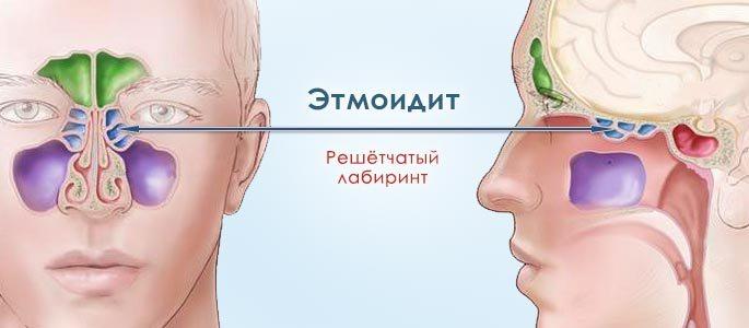 Расположение решетчатых пазух при этмоидите