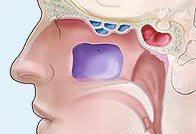 Симптомы и лечение сфеноидита