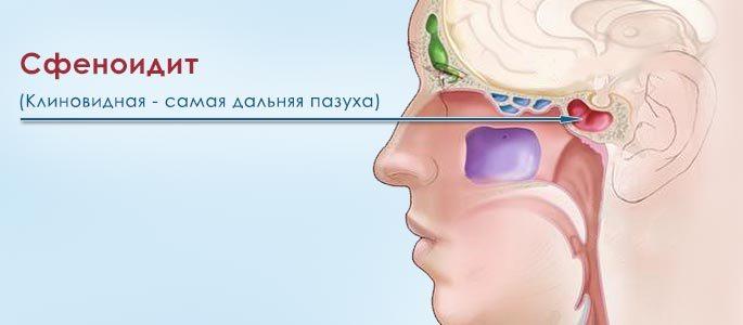 Сфеноидит: симпом, причины, лечение
