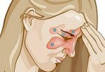 Мигрень при сфеноидите