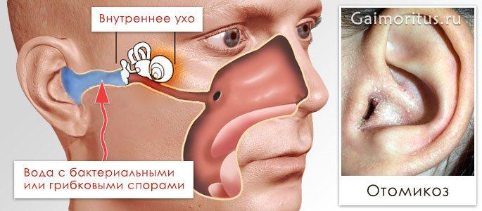 Развитие грибковых шелушений в ушах