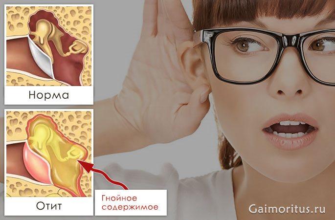 Как восстановить слух после отита Ухудшение слуха из за воспаления в ухе